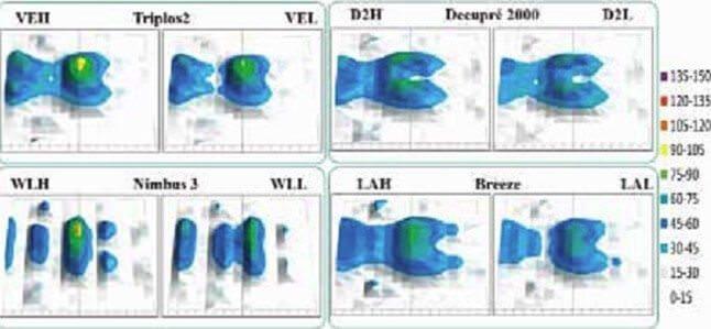 Een figuur waarop te zien is hoe de drukspreiding rondom het sacrum eruit ziet. In dit figuur wordt een Decupré multi-layer matras vergeleken met een gewoon visco-elastisch traagschuim matras en twee, volgens de studie, veel gebruikte luchtsystemen van de firma Arjo Huntleigh.