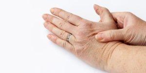 Artrose in de hand kan leiden tot pijn, stijfheid en krachtverlies.
