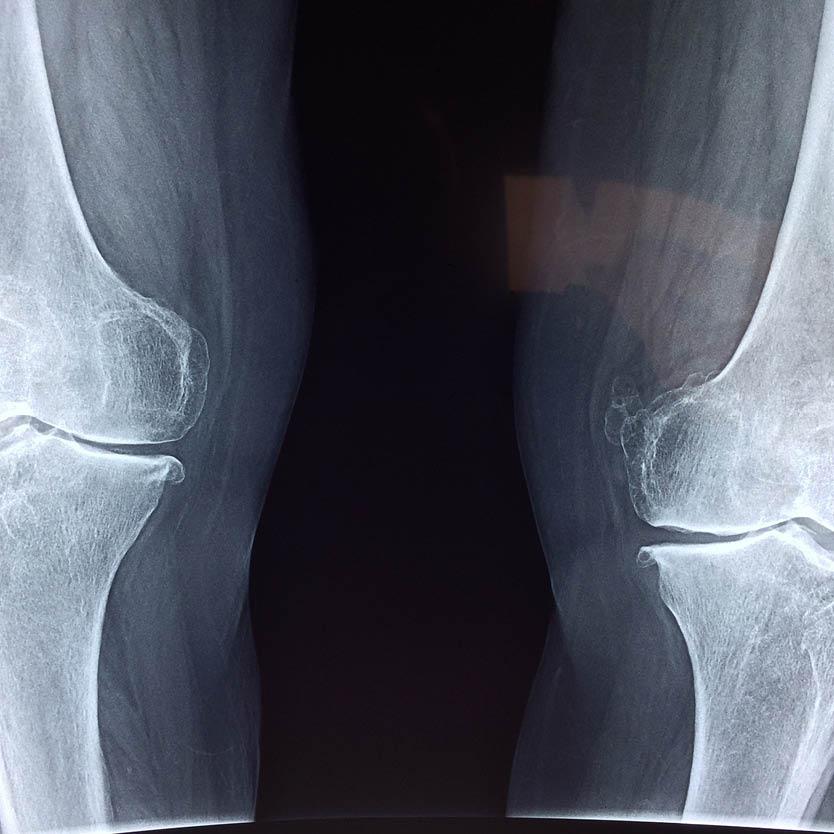 Een MRI scan waarop artrose zichtbaar is
