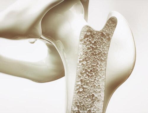 Osteoporose en het belang van een goed matras