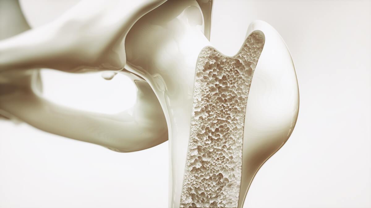 osteoporose botontkalking